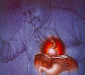 What Research has Taught Us about Curing Heartburn